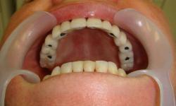 prótese fixa sobre implante