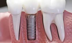 quanto custa implante dentário