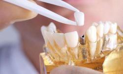 quanto custa um implante dentário