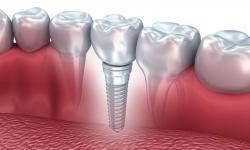 valor de um implante dentário