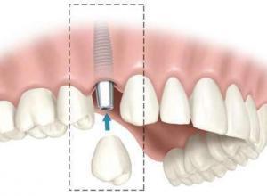 custo de implante dentário