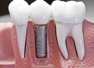 dentista especialista em implante