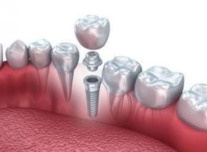 especialista em implante dentário