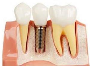 implante dentário preço médio