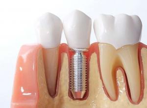 implante dentário preço por dente