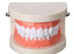 implante odontológico