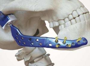 prótese mandibular