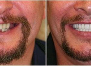 qual o preço de um implante dentário