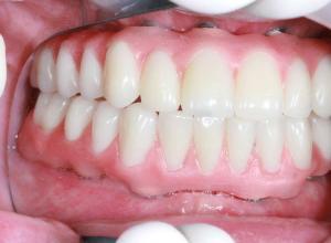 quanto custa em média um implante dentário