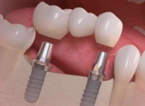 valor de um implante de dente