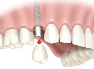 valor médio de um implante dentário