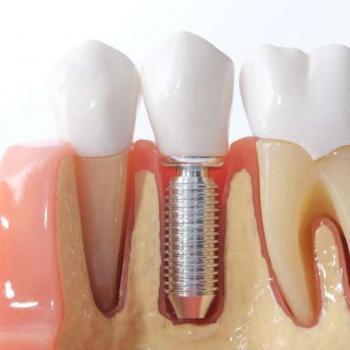 fazer implante dentário