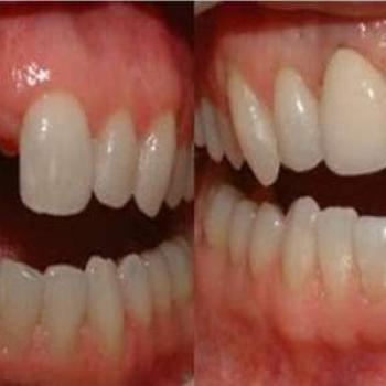 implante dente da frente preço