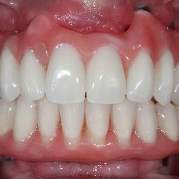prótese buco maxilo facial