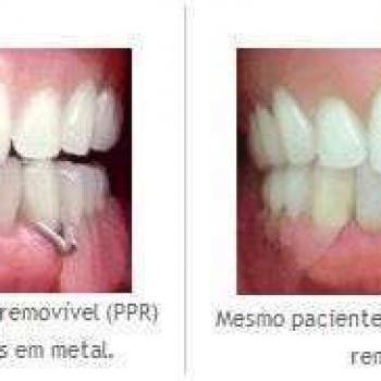 prótese dentaria flexível