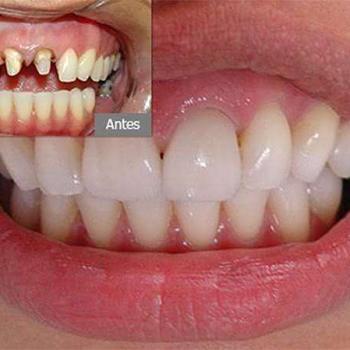 prótese dentes da frente