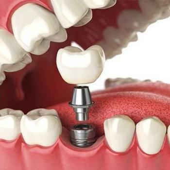 quanto custa um implante dentário de um dente
